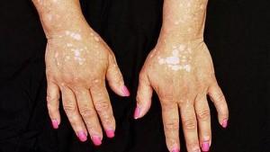 vitiligo--478x270