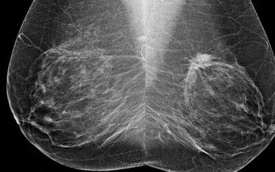 La mamografía en grupos seleccionados reduce el riesgo de muerte en un 40%