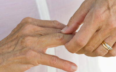 La artritis podría tener su propia terapia celular