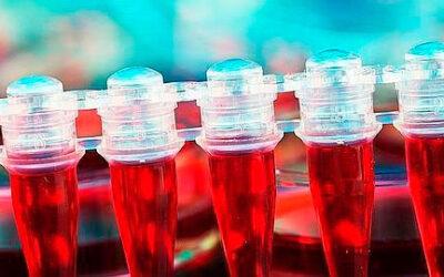 Un test de sangre define qué pacientes con artritis reumatoide fracasarán en su terapia