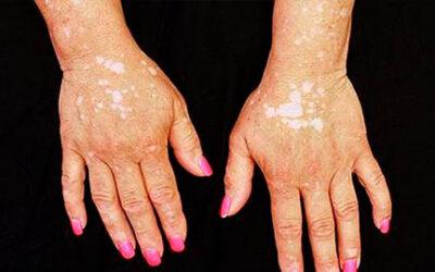 Un fármaco para la artritis elimina las manchas en vitíligo