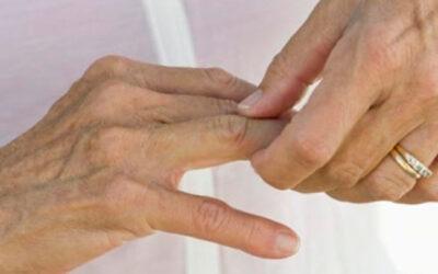 Ligan artritis reumatoide a factores genéticos y ambientales